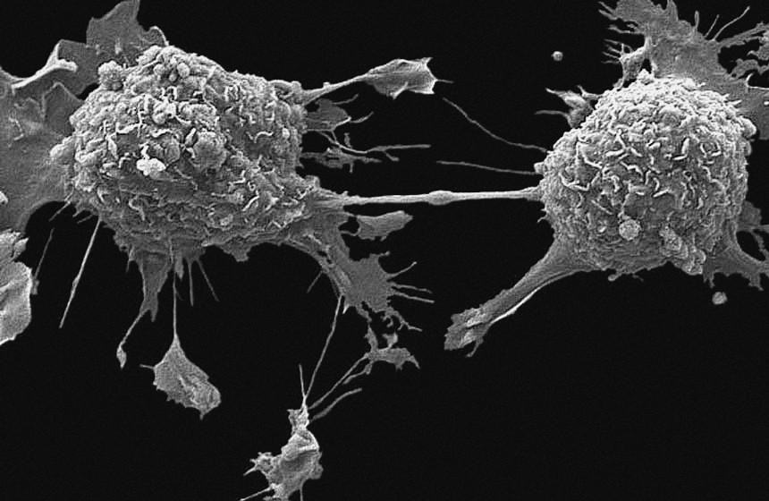 Les cellules cancéreuses sont faibles et facile à détruire