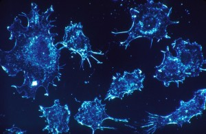 1280px-cancer_cells_1-660x430